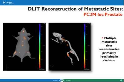 DLIT Reconstruction of Metastatic Sites